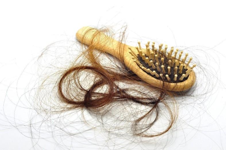 Выпадают волосы