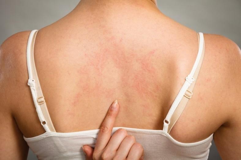 Аллергия на спине у девушки