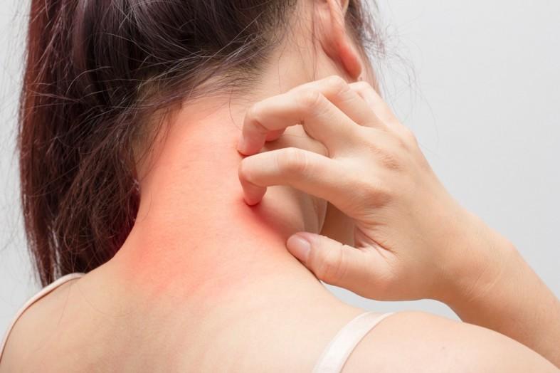 Аллергия у девушки на коже